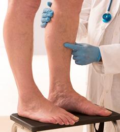 Varicose Vein Clinic